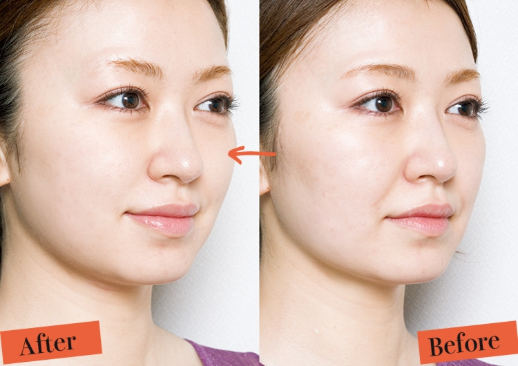 小顔や美肌に効果抜群!究極の最新美容機器〝ソニック・フィット〟がとにかくスゴい